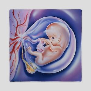 Artwork of a human foetus, 8 weeks old - Queen Duv