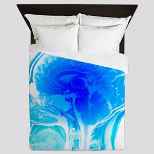 Brain anatomy, MRI scan - Queen Duvet