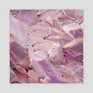 Rose quartz crystals, SEM - Queen Duvet