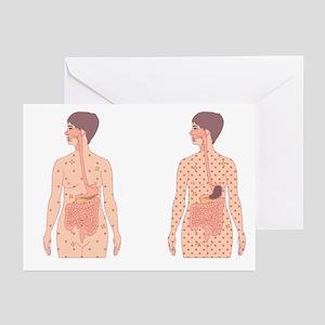 Diabetes, artwork - Greeting Cards (Pk of 20)