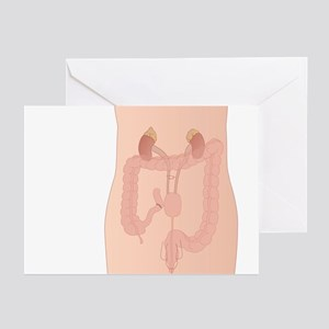 Urostomy procedure, artwork - Greeting Cards (Pk o