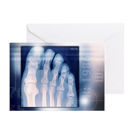 Toes, X-ray - Greeting Cards (Pk of 20)