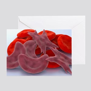 Sickle cell anaemia, artwork - Greeting Card