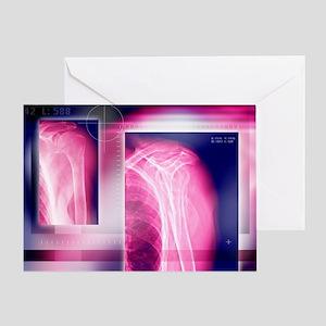Broken collar bone, X-ray - Greeting Card