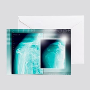 Fractured shoulder, X-rays - Greeting Card