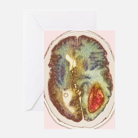 Glioma brain cancer growth, CT scan - Greeting Car
