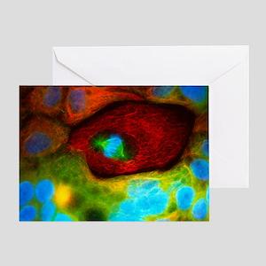 Immunofluorecent LM of human colon cancer cells -