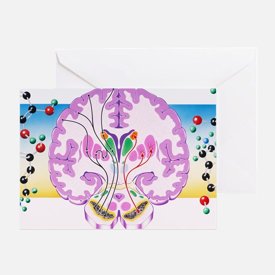 Parkinson's disease - Greeting Card