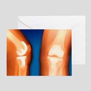 Prosthetic knee joint, coloured X-ray - Greeting C