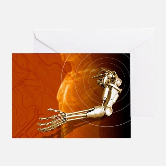 Prosthetic robotic arm, computer artwork - Greetin