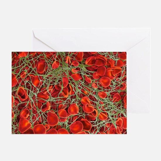 Blood clot, SEM - Greeting Card