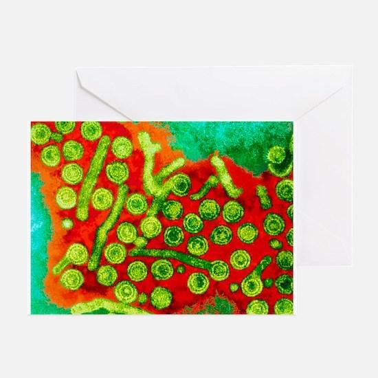 Hepatitis B viruses, TEM - Greeting Cards (Pk of 1