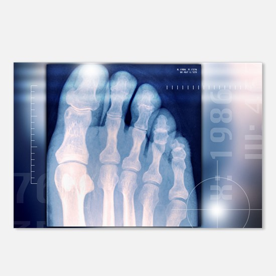 Toes, X-ray - Postcards (Pk of 8)