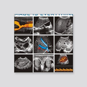 "General ultrasound images Square Sticker 3"" x 3"""