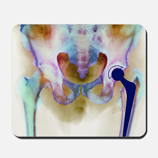 Hip joint replacement, X-ray - Mousepad