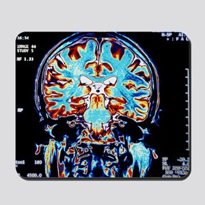 Coloured MRI scans of the brain, coronal view - Mo