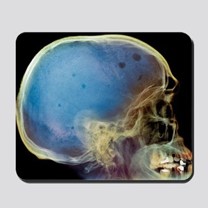Bone marrow cancer, X-ray - Mousepad