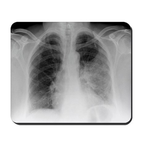 Pulmonary consolidation, X-ray - Mousepad