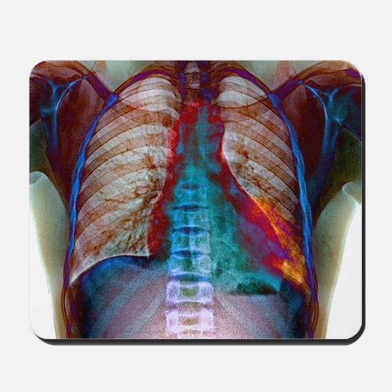 Lung infection - Mousepad