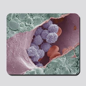 Bone marrow, SEM - Mousepad