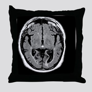 Alcoholic dementia, MRI scan - Throw Pillow