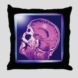 Normal head and brain, MRI scan - Throw Pillow