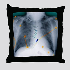 Heart surgery, X-ray - Throw Pillow