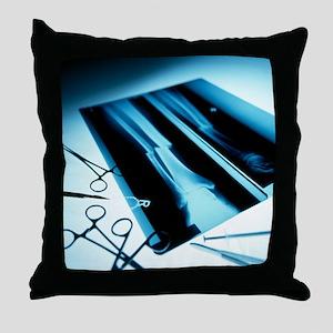 Leg fracture, X-ray - Throw Pillow