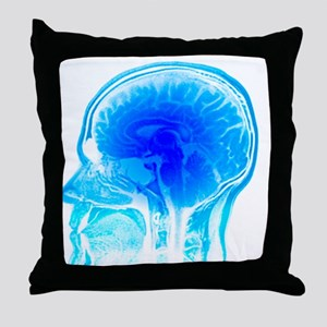 Brain anatomy, MRI scan - Throw Pillow