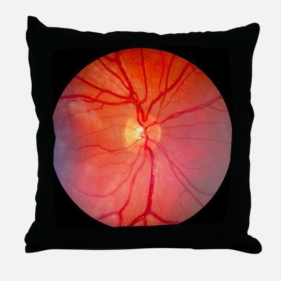 Normal retina of eye - Throw Pillow
