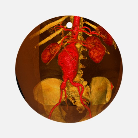 Aortic aneurysm, 3-D CT scan - Round Ornament