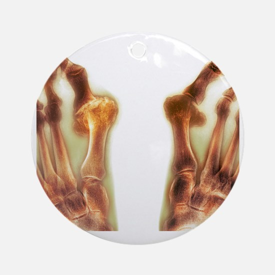 X-ray of bunions on the toes - Round Ornament