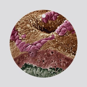 Uterine cancer, SEM - Round Ornament
