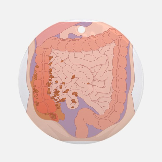 Ruptured appendix, artwork - Round Ornament