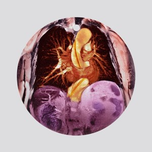 Dissecting aorta, MRI scan - Round Ornament
