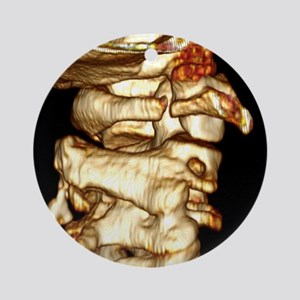 Fractured atlas vertebra, 3D CT scan - Round Ornam
