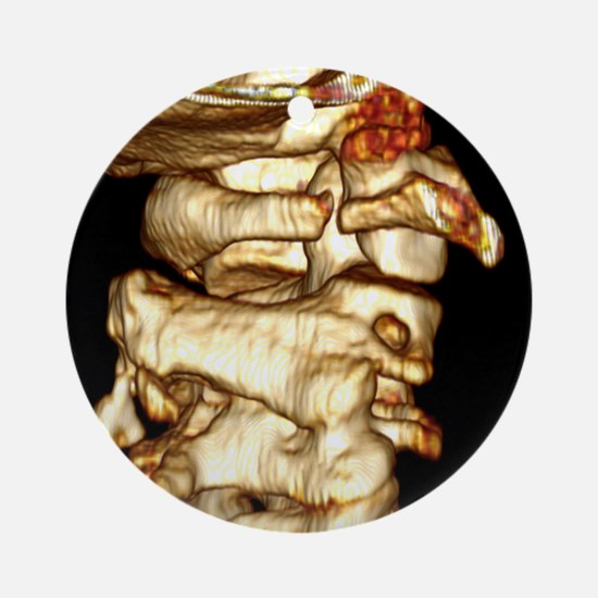 Fractured atlas vertebra, 3D CT scan - Round Ornam