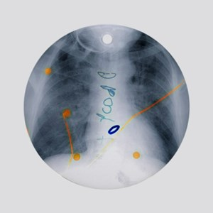 Heart surgery, X-ray - Round Ornament