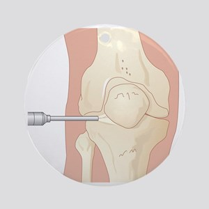 Knee arthroscopy, artwork - Round Ornament
