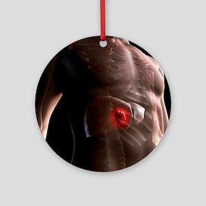 Liver cancer, artwork - Round Ornament