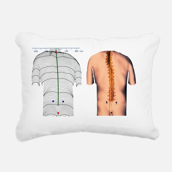 Scoliosis of the back, contour map - Rectangular C