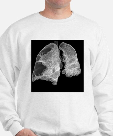 Emphysema of the lungs, CT scan - Sweatshirt