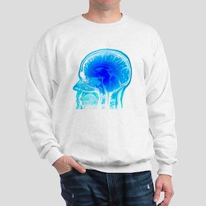 Brain anatomy, MRI scan - Sweatshirt