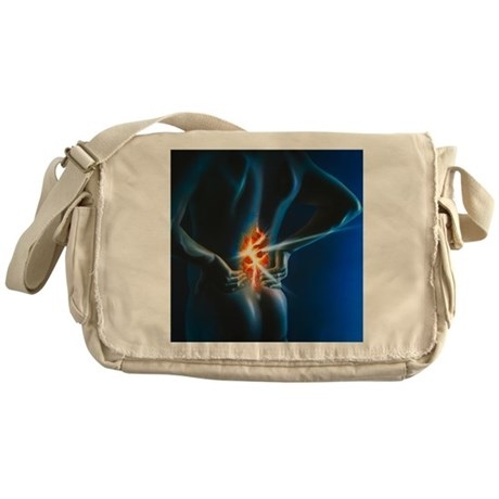 Messenger bag back pain