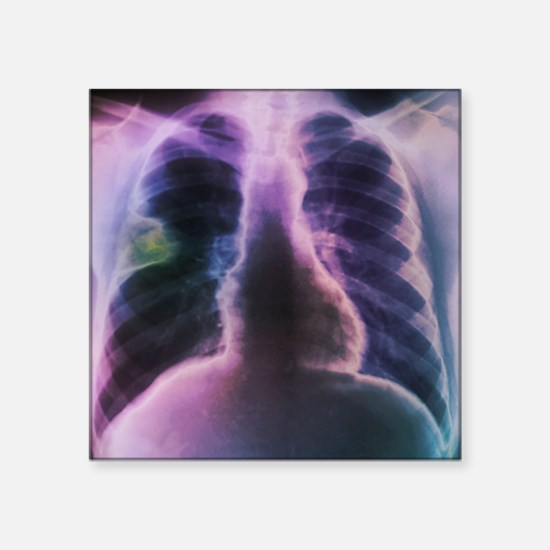 Lung abscess, X-ray - Square Sticker 3
