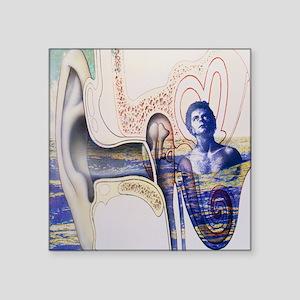 Conceptual artwork of an ear with tinnitus - Squar