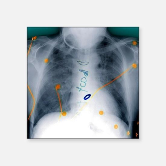 Heart surgery, X-ray - Square Sticker 3
