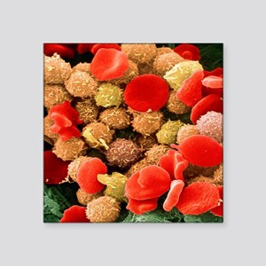 Leukaemia blood cells, SEM - Square Sticker 3