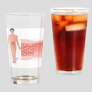 Crohn's disease, artwork - Drinking Glass