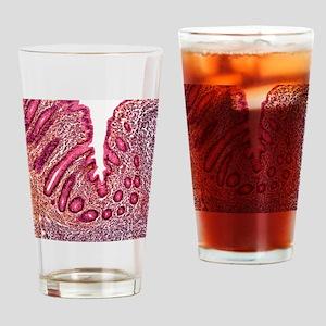 Appendicitis, light micrograph - Drinking Glass